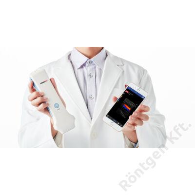 Sonon 300L hordozható ultrahang diagnosztikai készülék